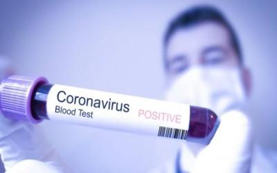 Pelaksanaan KBM dan Ujian Nasional terkait Virus Corona.